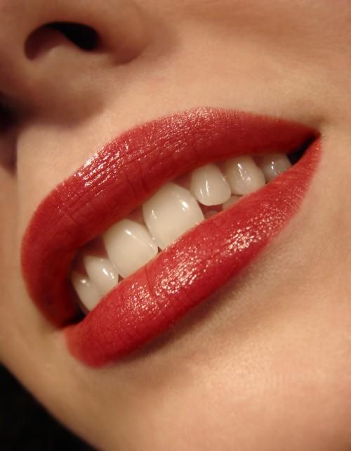 Bleaching | Zahnaufhellung |schöne weisse Zähne durch Bleichen