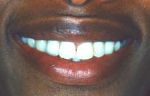 Schöne weisse Zähne